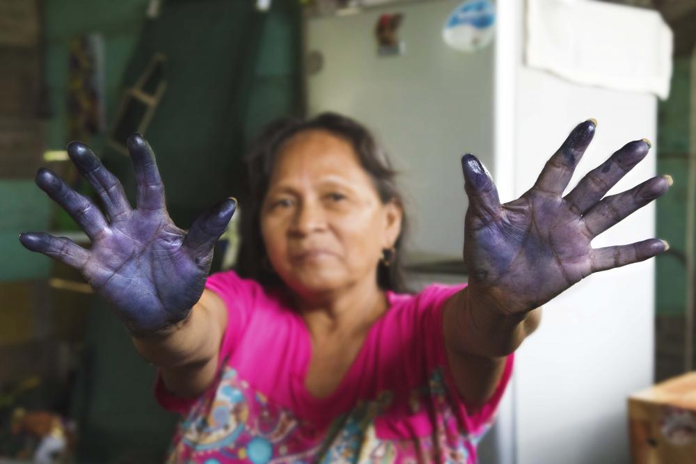 A woman shows her stained hands.